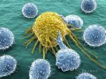 乳腺癌转移残酷的真相