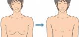 男性乳腺癌治疗策略应不同于女性
