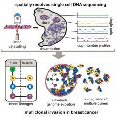 文章解析:应用空间单细胞测序技术鉴别乳腺癌肿瘤的多克隆侵袭性